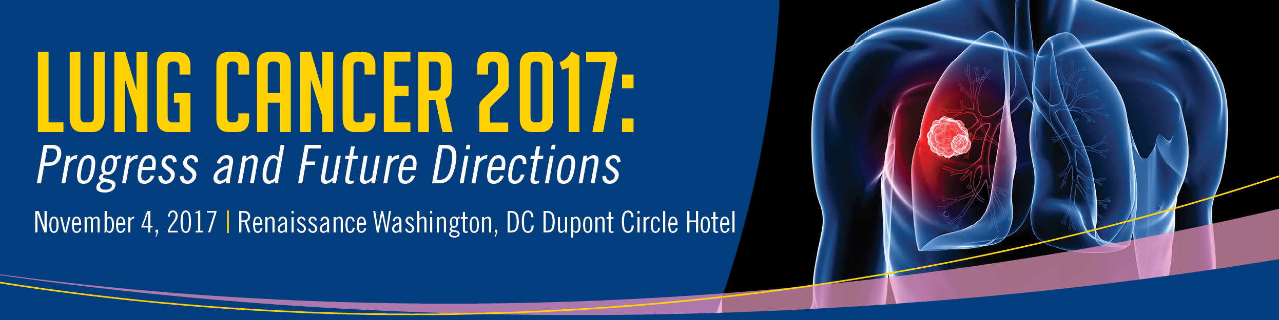 Lung Cancer 2017: Progress and Future Directions Banner